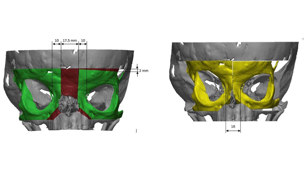 Figura 5: Risultato della simulazione (a) delle osteotomie e (b) del riposizionamento ottimale per minimizzare le asimmetrie
